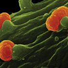 A Short Introduction to Medical Bacteriology | Teaching & Academics Science Online Course by Udemy